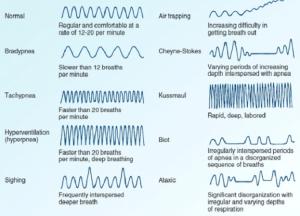 فیزیوتراپی تنفسی